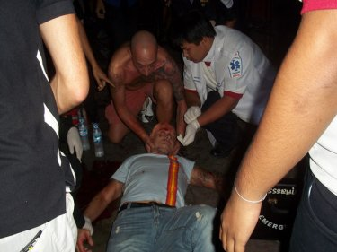 The Italian lies on a Patong soi after allegedly being attacked by a guard