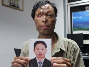 Kin So, who went from rags to riches then suffered an acid attack